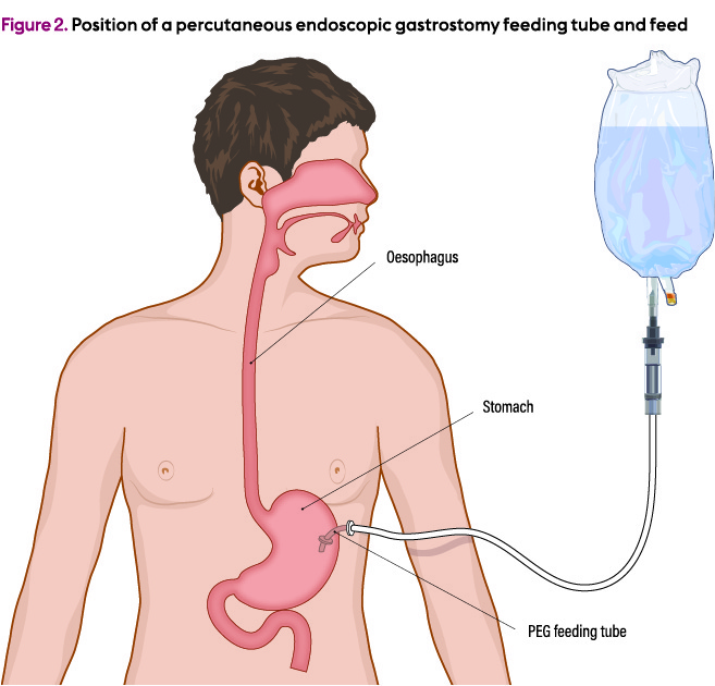 a nurse is caring for a client who has a percutaneous endoscopic gastrostomy-0